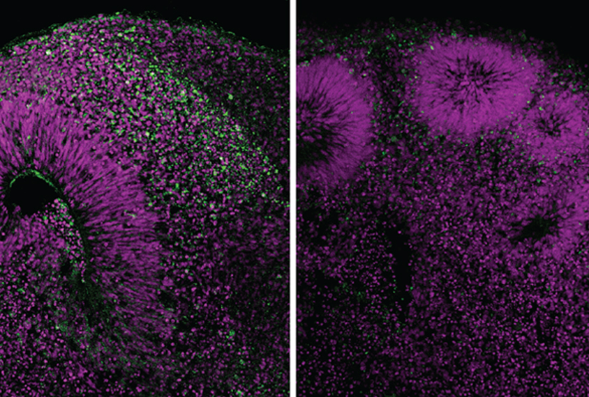 Brain organoids lacking a functional copy of a gene linked to microcephaly have lower levels of a structural protein (green) than do organoids with functional copies of the gene.